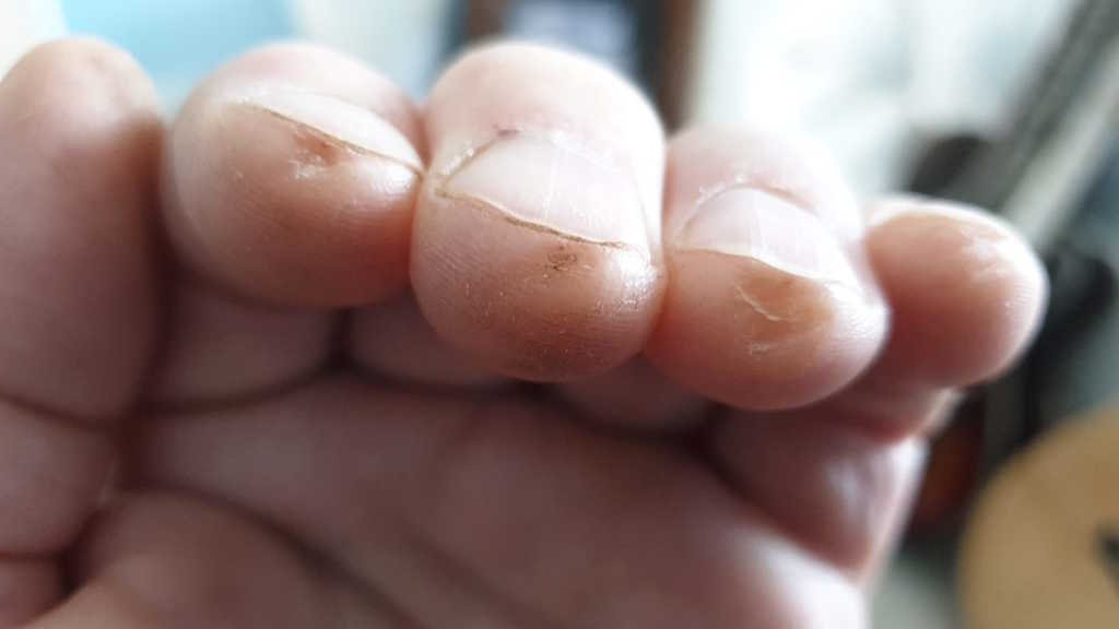 Sore fingers from playing guitar